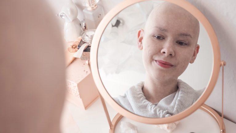 Tipy jak podpořit růst vlasů (nejen) po chemoterapii